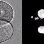 受精卵にDNAを入れると「人工細胞核」ができた!