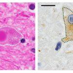 パーキンソン病はサプリメントで予防できるか? – 神経シナプスのαシヌクレインがその鍵を握っている