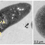 ゲノムが膜で包まれた常識外れのバクテリア – 最先端の顕微鏡で鮮やかにとらえた膜構造
